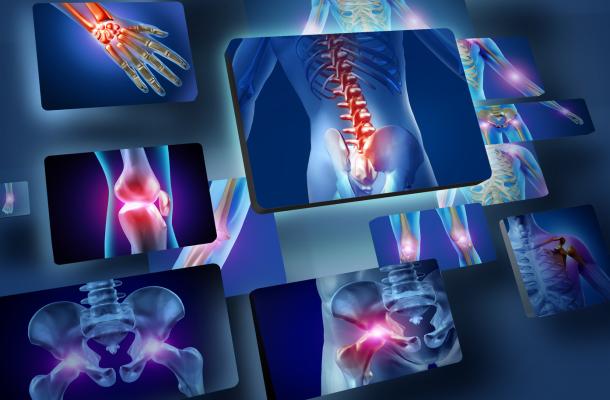 csontritkulas-megelozes-fokep-egeszsegugyelet