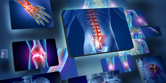 csontritkulas-megelozes-kiemelt