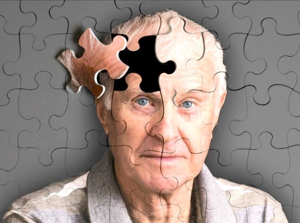 Az Alzheimer-kór korai tünetei.