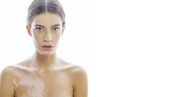 Vitiligo bőrbetegség.