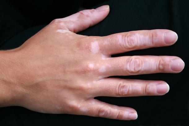 Bőrbetegség fehér foltokkal.