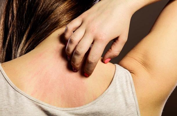 Amire a bőröd figyelmeztethet