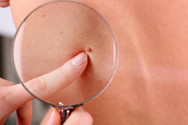 Amit a bőröd jelez