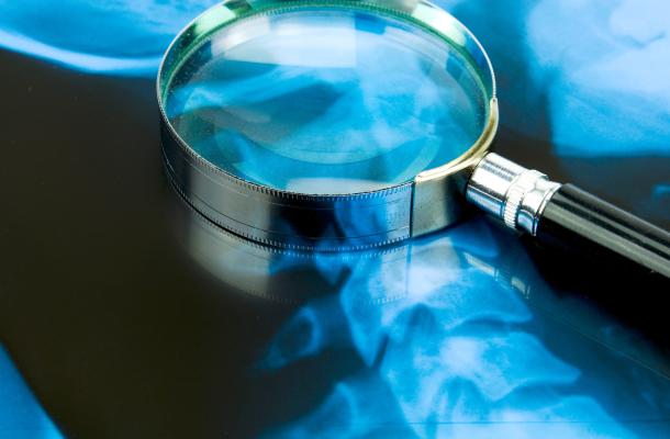 erdekessegek-a-csontrendszerrol-egeszsegugyelet-nagy