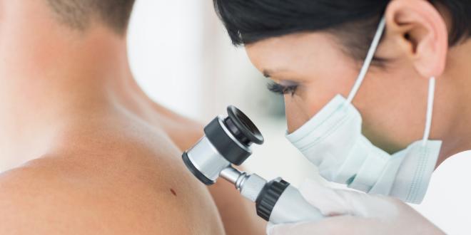 kuponok-egeszsegugyelet-melanomaszures-kiemelt