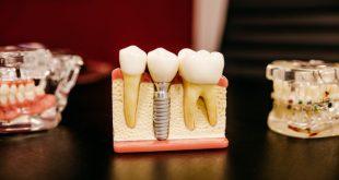 A foghiány meglepő negatív hatásai
